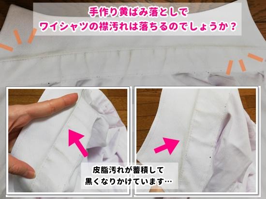 首元が皮脂汚れで黒くなったワイシャツの画像